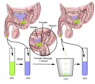 prostatitis test
